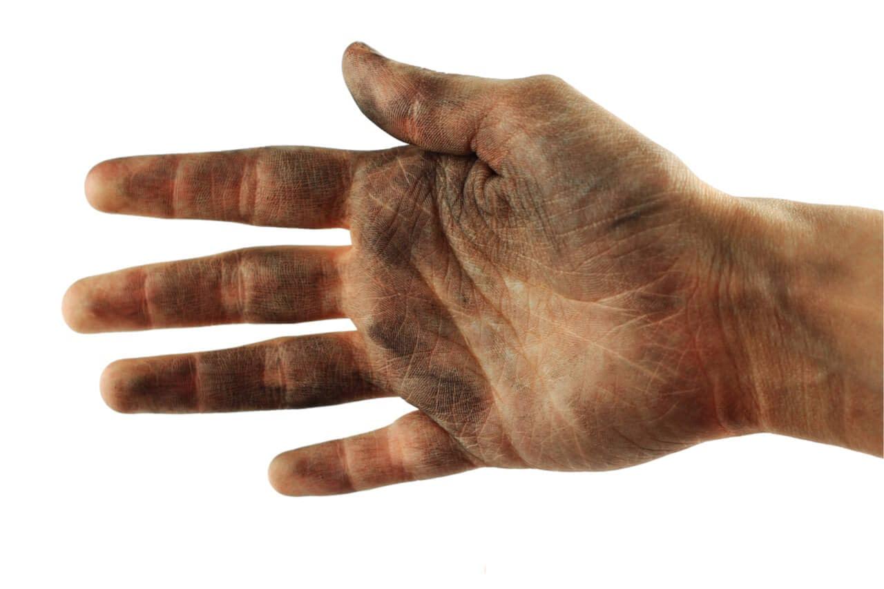poor hygiene diseases