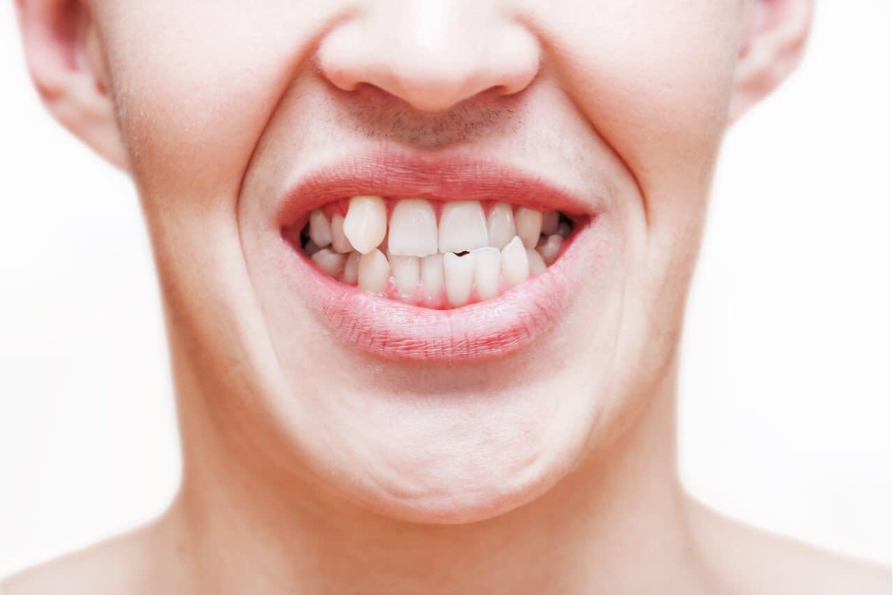 crooked teeth smile