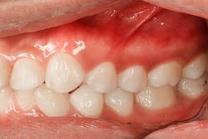 gum pain relief